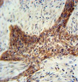 Immunohistochemistry (Formalin/PFA-fixed paraffin-embedded sections) - RILPL2 antibody (ab108041)