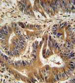 Immunohistochemistry (Formalin/PFA-fixed paraffin-embedded sections) - VPS52 antibody (ab108054)