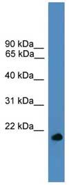 Western blot - UBL4A antibody (ab108060)
