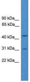 Western blot - DUBA2 antibody (ab108070)