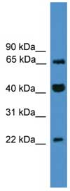 Western blot - TCEAL6 antibody (ab108072)