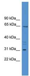 Western blot - MEPE antibody (ab108073)