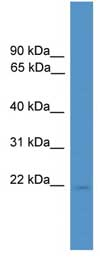 Western blot - RHOXF1 antibody (ab108074)