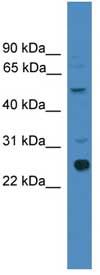 Western blot - Zmat2 antibody (ab108076)