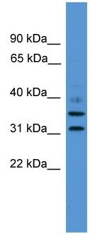 Western blot - GIMAP6 antibody (ab108077)