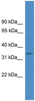 Western blot - ELMOD1 antibody (ab108078)