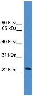 Western blot - DGAT2L7 antibody (ab108079)