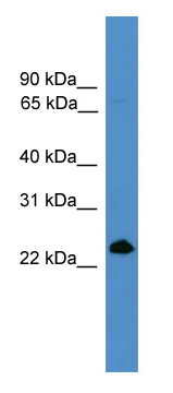 Western blot - CD252 antibody (ab108083)