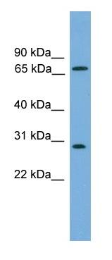 Western blot - Semenogelin II antibody (ab108085)