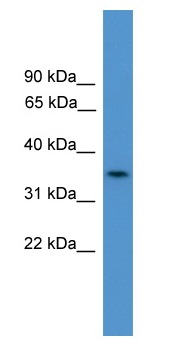Western blot - C4orf19 antibody (ab108087)