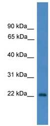 Western blot - OTUB2 antibody (ab108098)