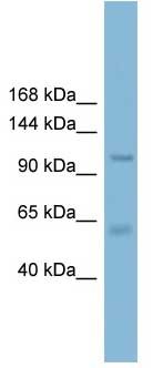 Western blot - CLCA2 antibody (ab108101)