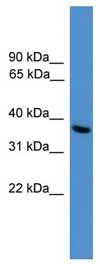 Western blot - UCH37 antibody (ab108103)