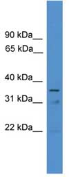 Western blot - ETV2 antibody (ab108112)