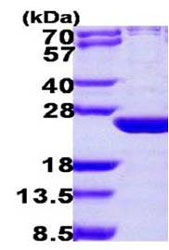 SDS-PAGE - ARL6 protein (ab108125)