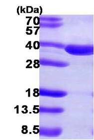 SDS-PAGE - SULT2A1 protein (ab108128)