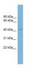 Western blot - ZNF367 antibody (ab108141)