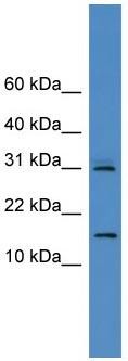Western blot - CST8 antibody (ab108153)