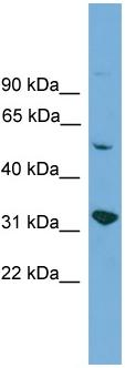 Western blot - YIPF2 antibody (ab108157)