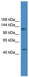 Western blot - ADCY2 antibody (ab108164)