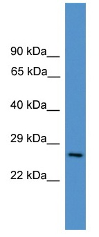 Western blot - CD8 alpha antibody (ab108166)