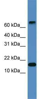 Western blot - CST9 antibody (ab108174)