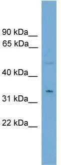 Western blot - Monoacylglycerol Lipase antibody (ab108176)