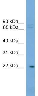 Western blot - IFFO antibody (ab108177)