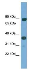 Western blot - KHDRBS2 antibody (ab108181)