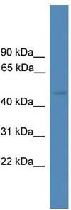 Western blot - SERPINA10 antibody (ab108185)