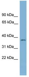 Western blot - NUBP1 antibody (ab108187)