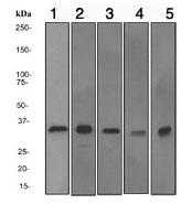 Western blot - Annexin V antibody [EPR3980] (ab108194)