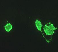 Immunocytochemistry/ Immunofluorescence - Annexin V antibody [EPR3980] (ab108194)
