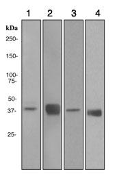 Western blot - Alcohol Dehydrogenase antibody [EPR4439] (ab108203)