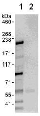 Immunoprecipitation - UBR1 antibody (ab108215)