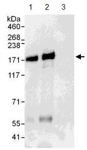 Immunoprecipitation - ANKRD50 antibody (ab108219)