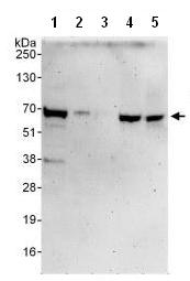 Western blot - FUBP3 antibody (ab108222)