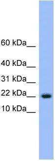 Western blot - NXT1 antibody (ab108233)