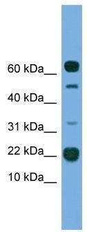 Western blot - TMEM107 antibody (ab108235)
