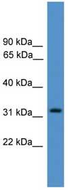 Western blot - Proteasome Inhibitor subunit 1 PI3 1 antibody (ab108255)