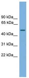 Western blot - CPA6 antibody (ab108258)