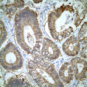 Immunohistochemistry (Formalin/PFA-fixed paraffin-embedded sections)-Anti-CD46 antibody [EPR4014](ab108307)