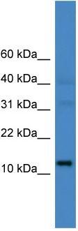 Western blot - C14orf48 antibody (ab108316)