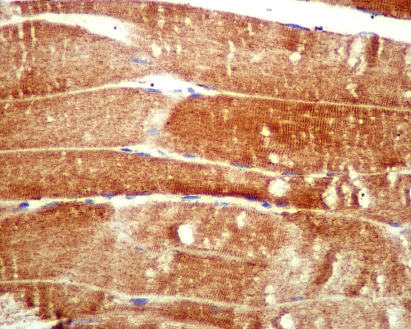 Immunohistochemistry (Formalin/PFA-fixed paraffin-embedded sections) - ATG4A antibody [EPR4122] (ab108322)