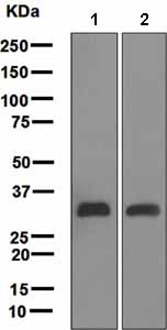 Western blot - C1QA antibody [EPR2979(2)] (ab108325)