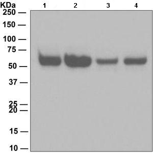 Western blot - Anti-Caspase-8 [EPR162] antibody (ab108333)