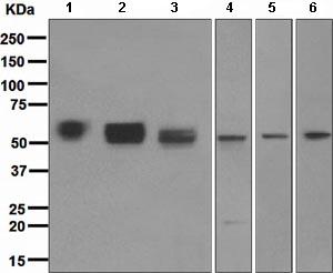 Western blot - Angiotensinogen antibody [EPR2931] (ab108334)