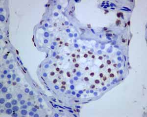 Immunohistochemistry (Formalin/PFA-fixed paraffin-embedded sections)-Anti-Androgen Receptor antibody [ER179(2)](ab108341)