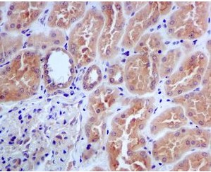 Immunohistochemistry (Formalin/PFA-fixed paraffin-embedded sections) - CDC45L antibody [EPR5758] (ab108350)