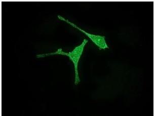 Immunocytochemistry/ Immunofluorescence - Aurora A antibody [EPR5026] (ab108353)